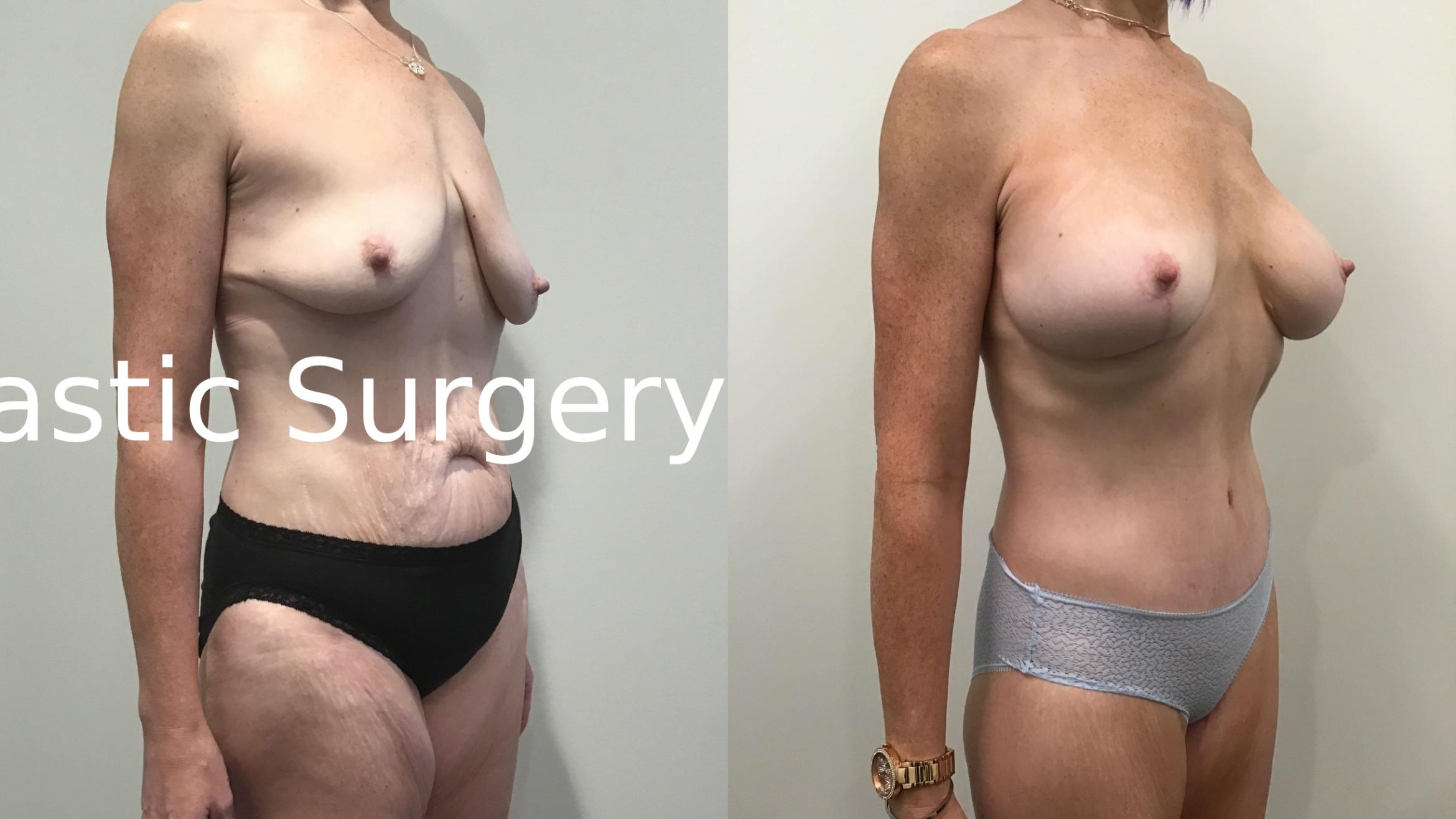 Body Contouring After Weight Loss Case 342 Before & After Left Oblique | Latham, New York | Rockmore Plastic Surgery