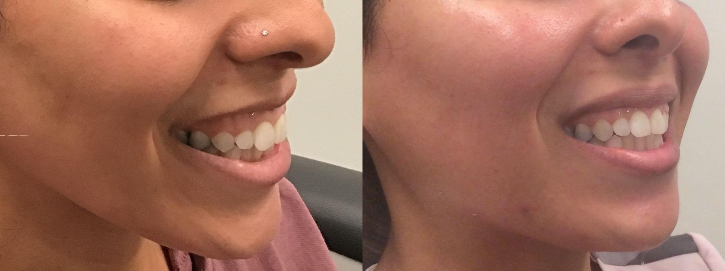 BOTOX® Cosmetic Case 386 Before & After Right Oblique | Latham, New York | Rockmore Plastic Surgery