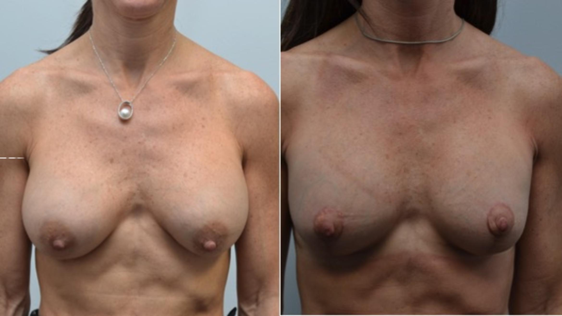 Breast Augmentation Revision Case 251 Before & After View #1 | Albany & Latham, New York | Rockmore Plastic Surgery