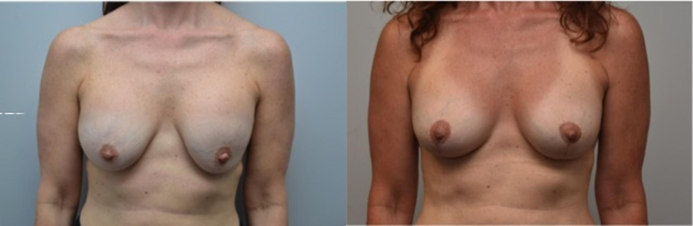 Breast Augmentation Revision Case 291 Before & After View #1 | Latham, New York | Rockmore Plastic Surgery