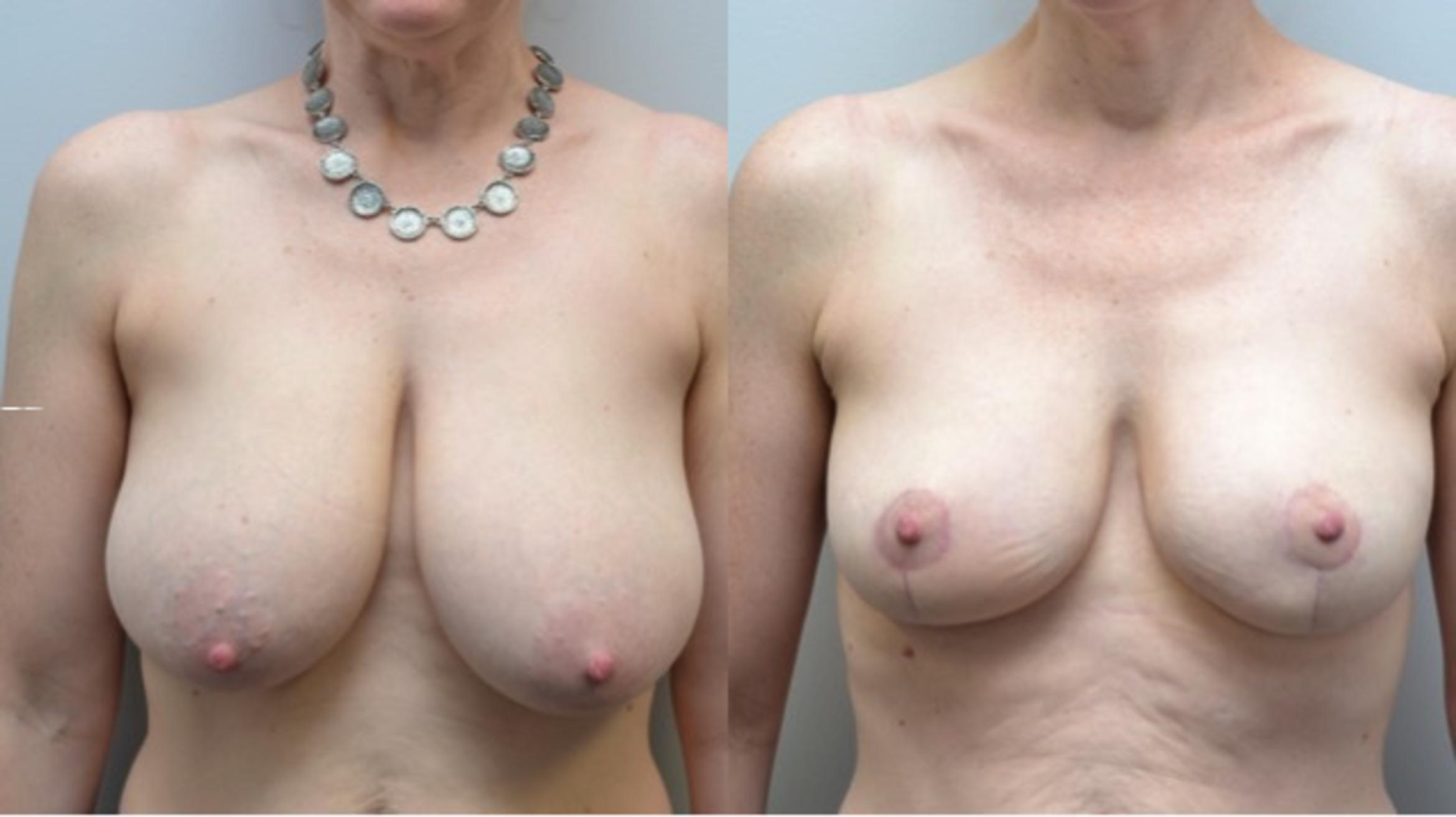 Breast Reduction Case 236 Before & After View #1 | Albany & Latham, New York | Rockmore Plastic Surgery