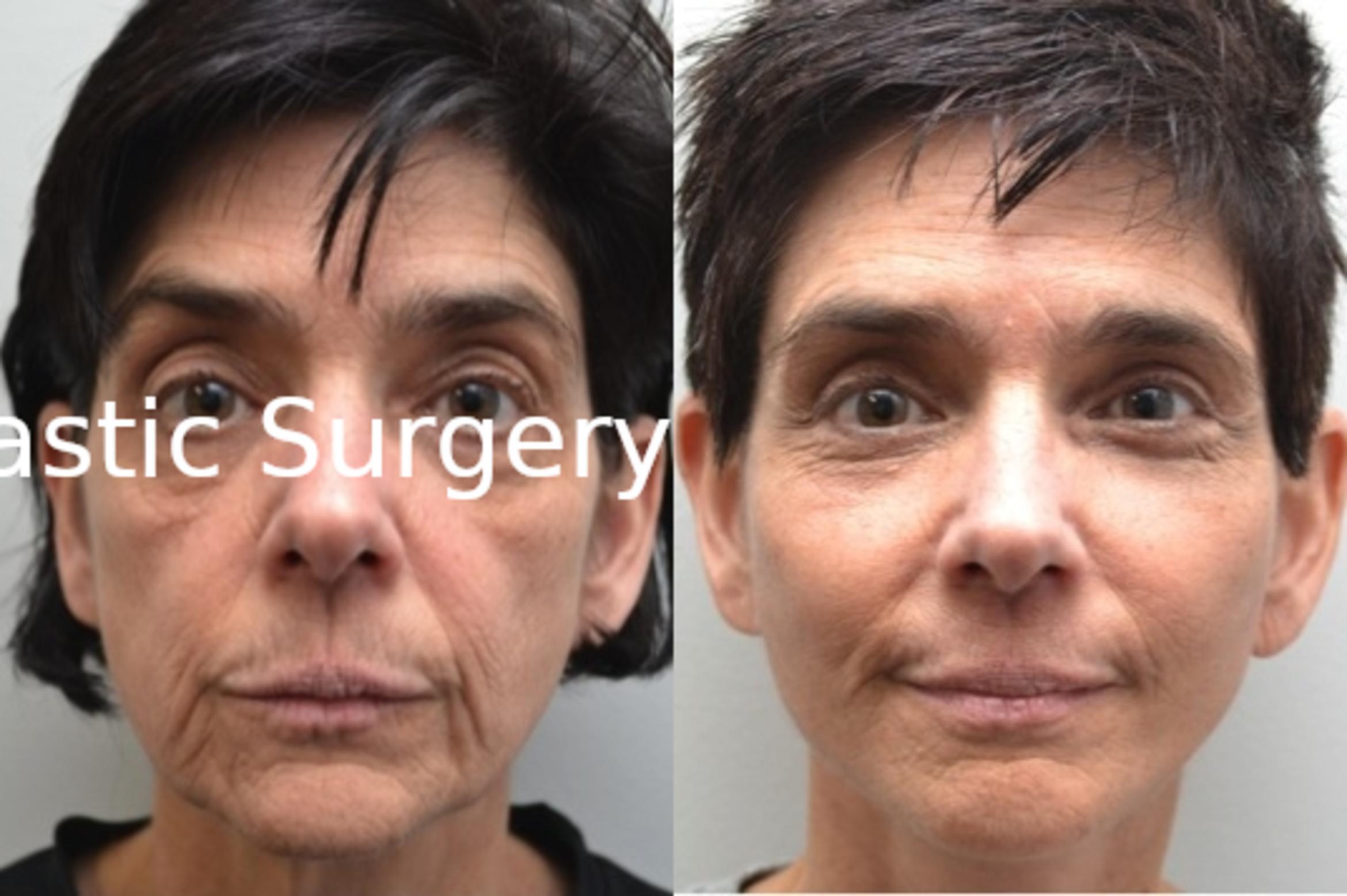 Facelift Case 211 Before & After View #1 | Albany & Latham, New York | Rockmore Plastic Surgery