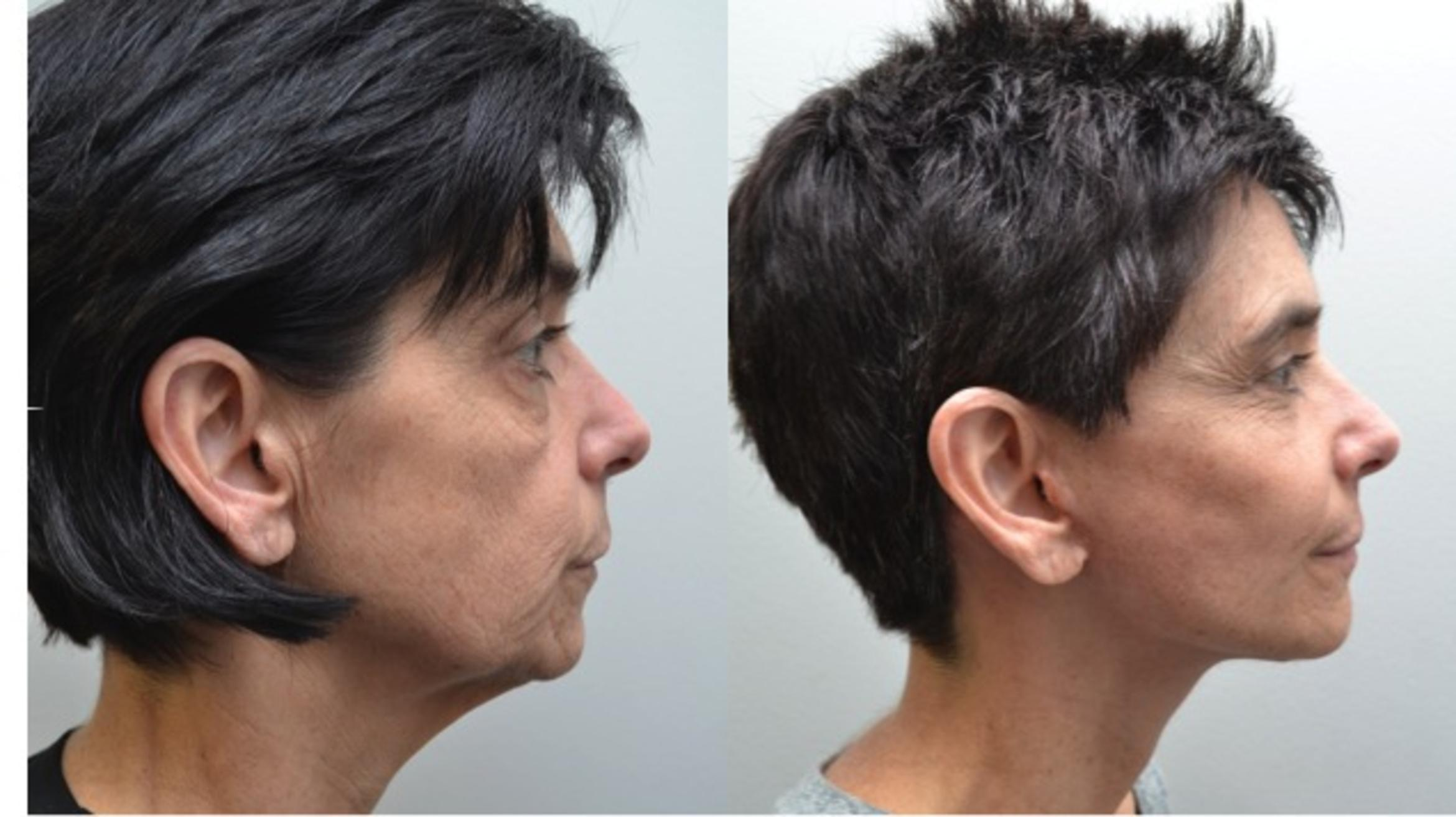 Facelift Case 211 Before & After View #2 | Albany & Latham, New York | Rockmore Plastic Surgery