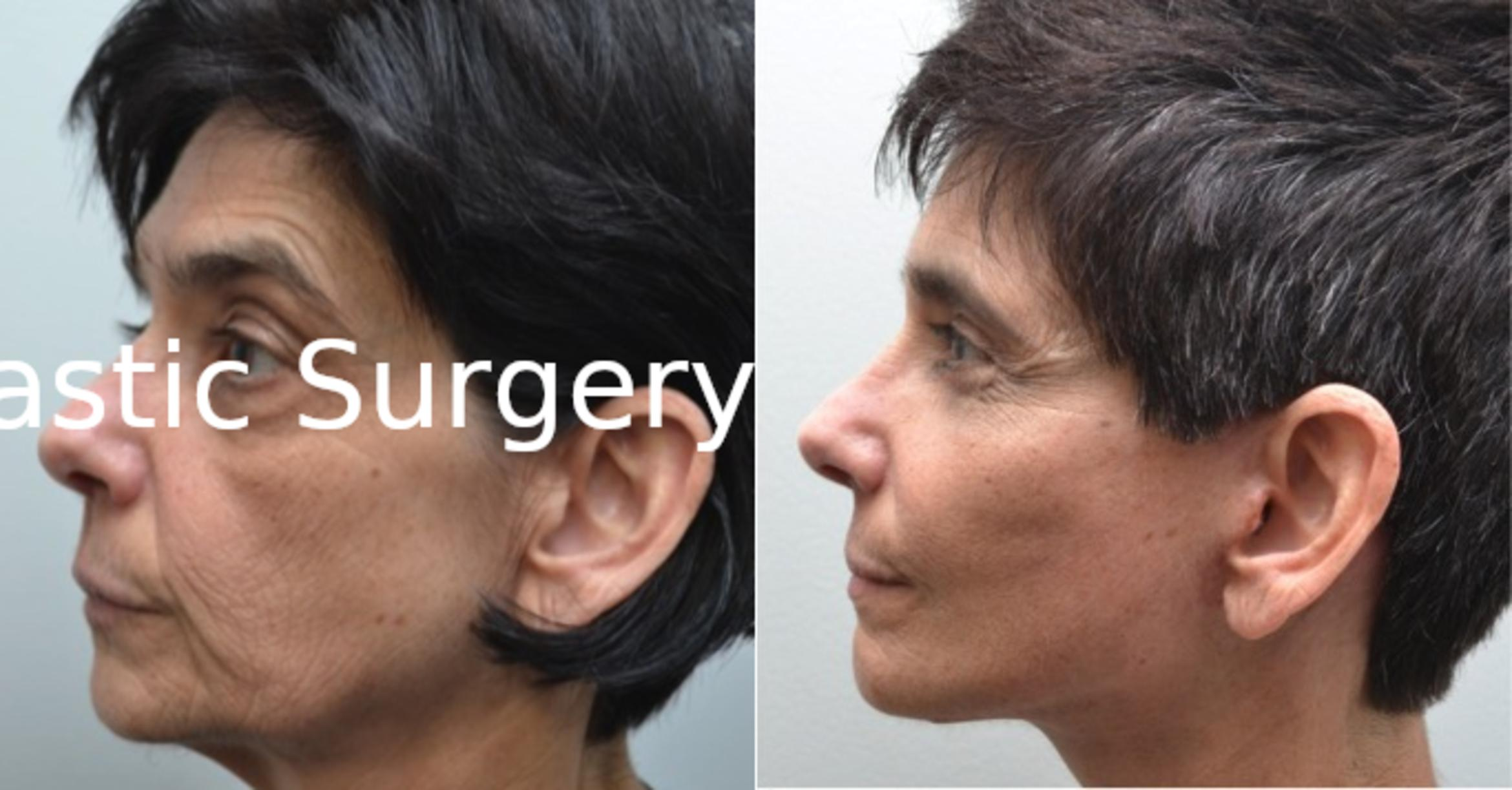 Facelift Case 211 Before & After View #3 | Albany & Latham, New York | Rockmore Plastic Surgery