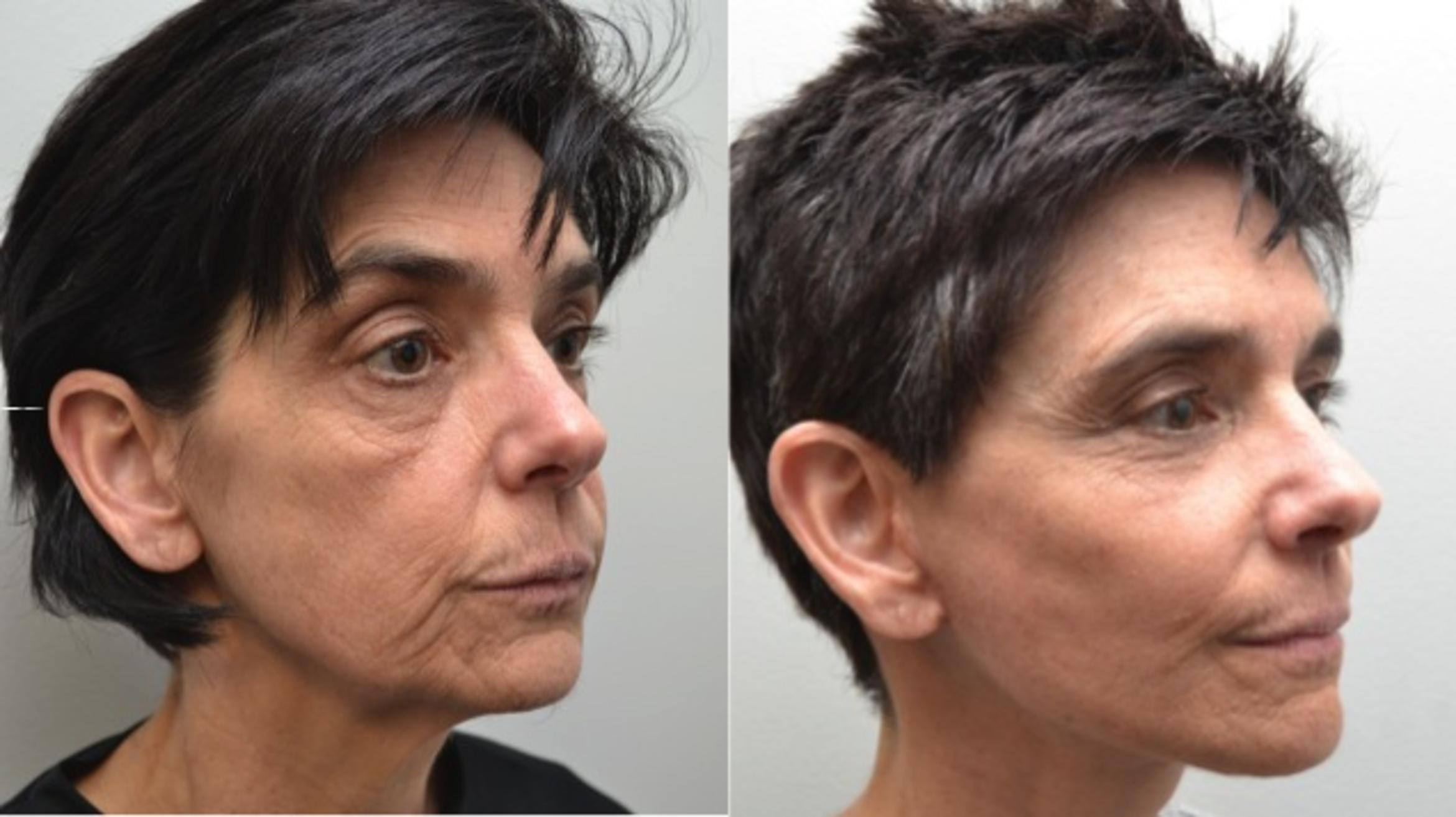 Facelift Case 211 Before & After View #5 | Albany & Latham, New York | Rockmore Plastic Surgery