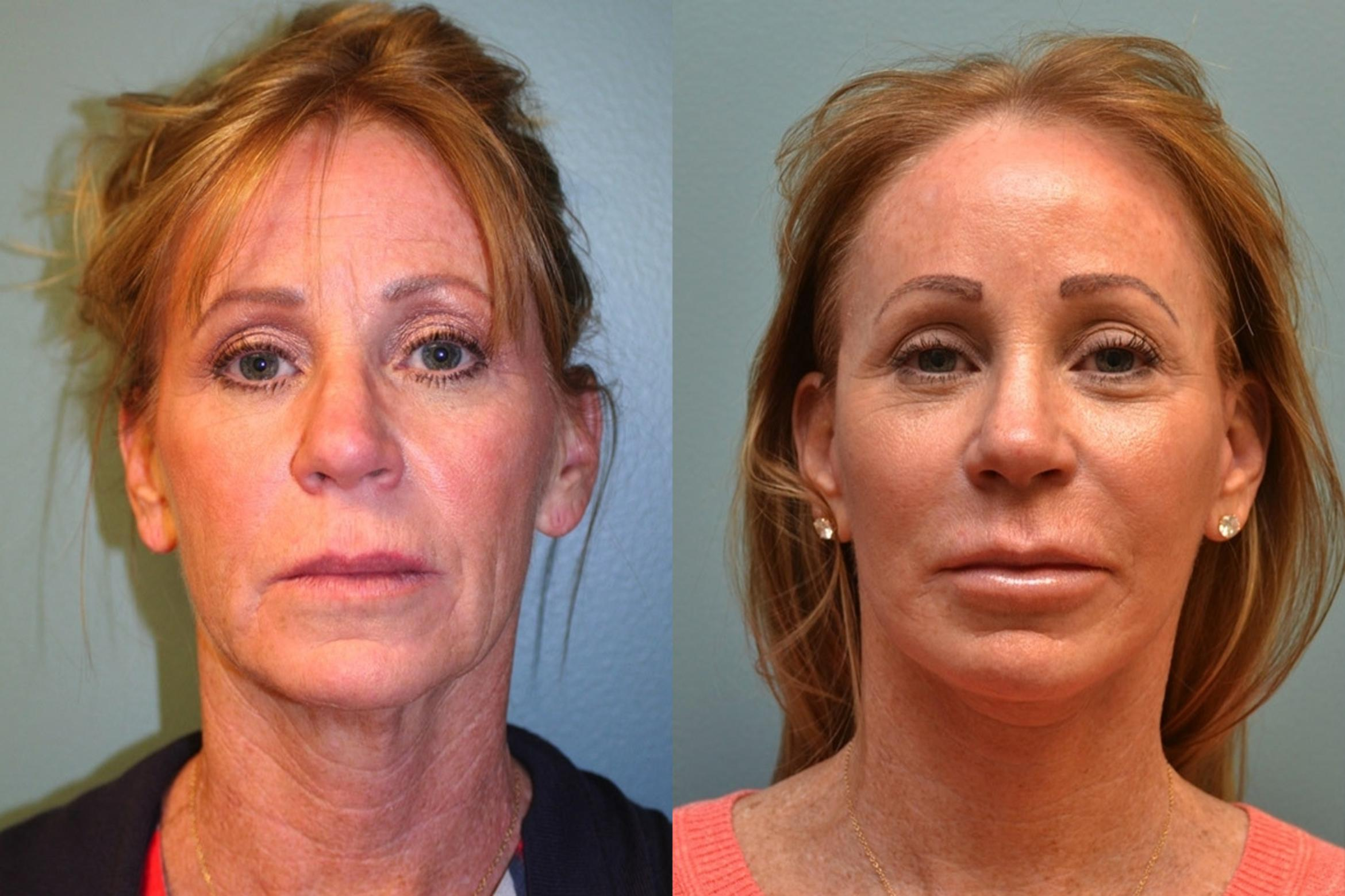 Facelift Case 347 Before & After Front | Albany & Latham, New York | Rockmore Plastic Surgery