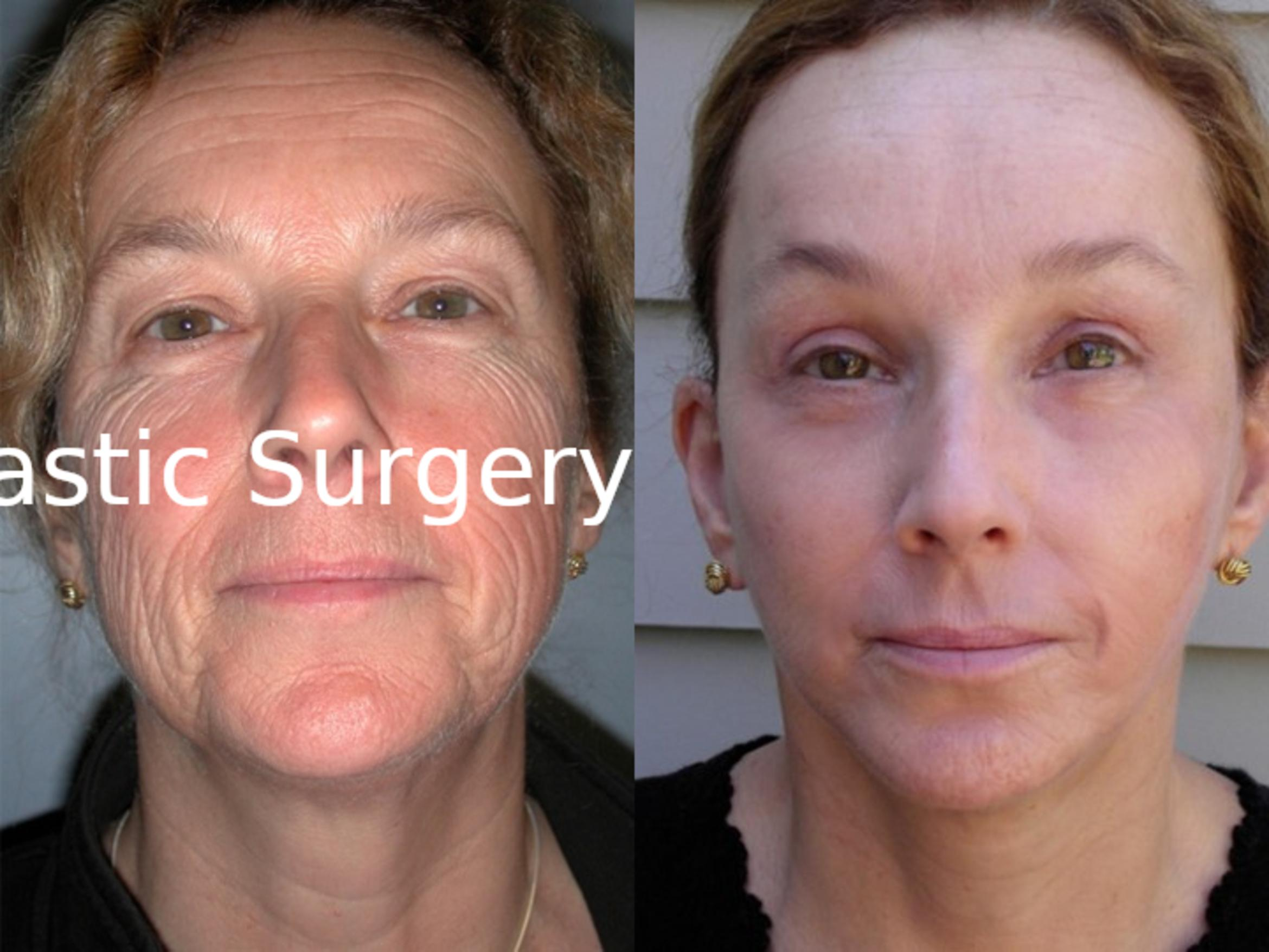 Facelift Case 41 Before & After View #1 | Latham, New York | Rockmore Plastic Surgery