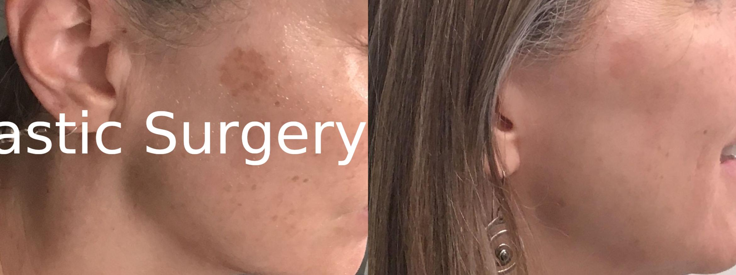 Icon Laser Case 399 Before & After Right Side | Latham, New York | Rockmore Plastic Surgery