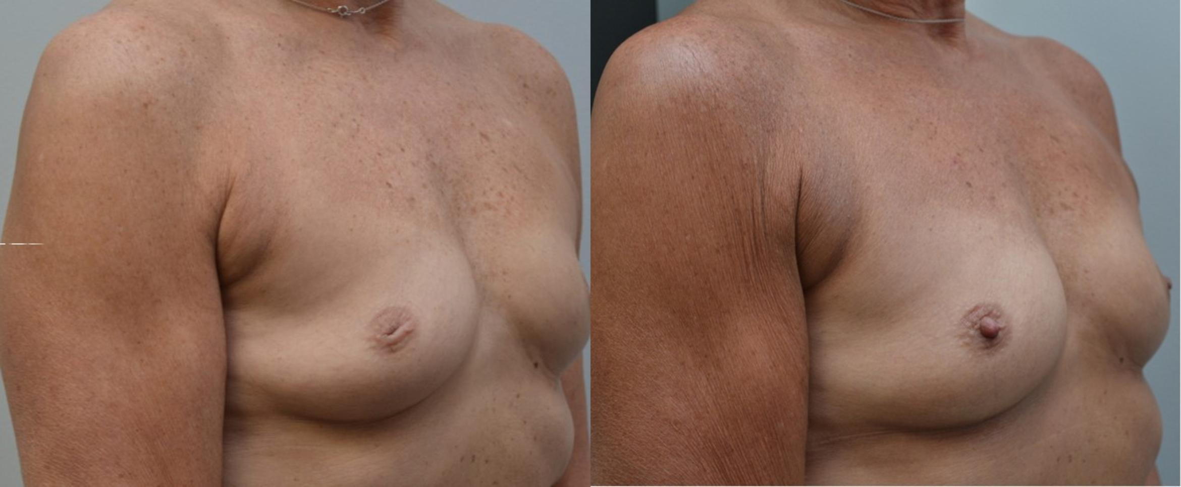 Inverted Nipple Images
