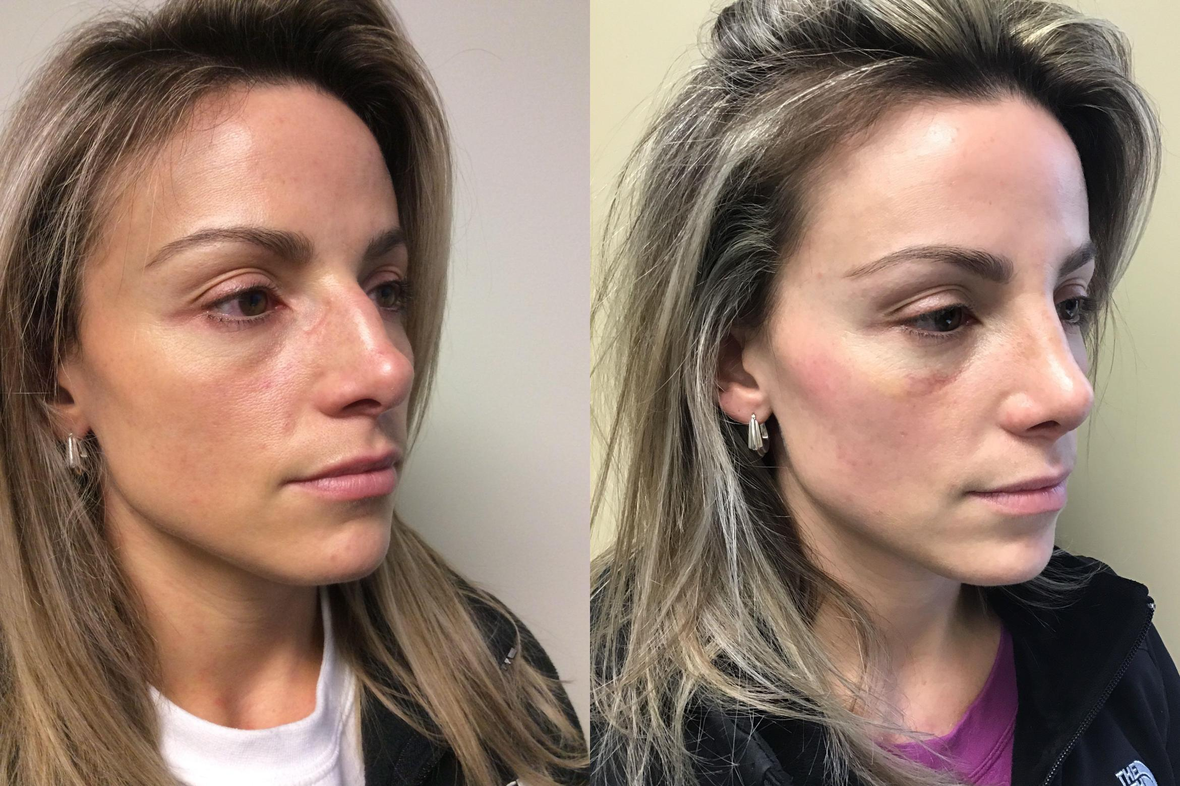 Rhinoplasty Case 349 Before & After Right Oblique | Albany & Latham, New York | Rockmore Plastic Surgery