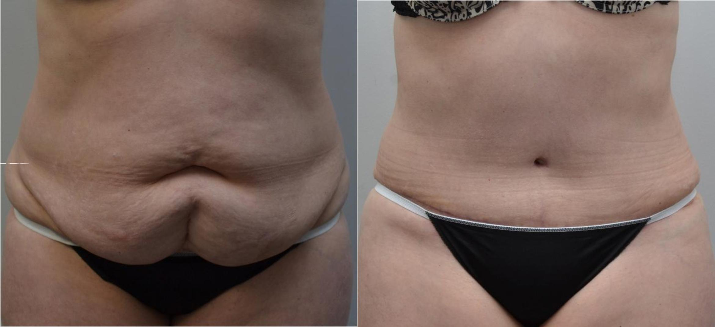 Tummy Tuck Case 197 Before & After View #1 | Latham, New York | Rockmore Plastic Surgery